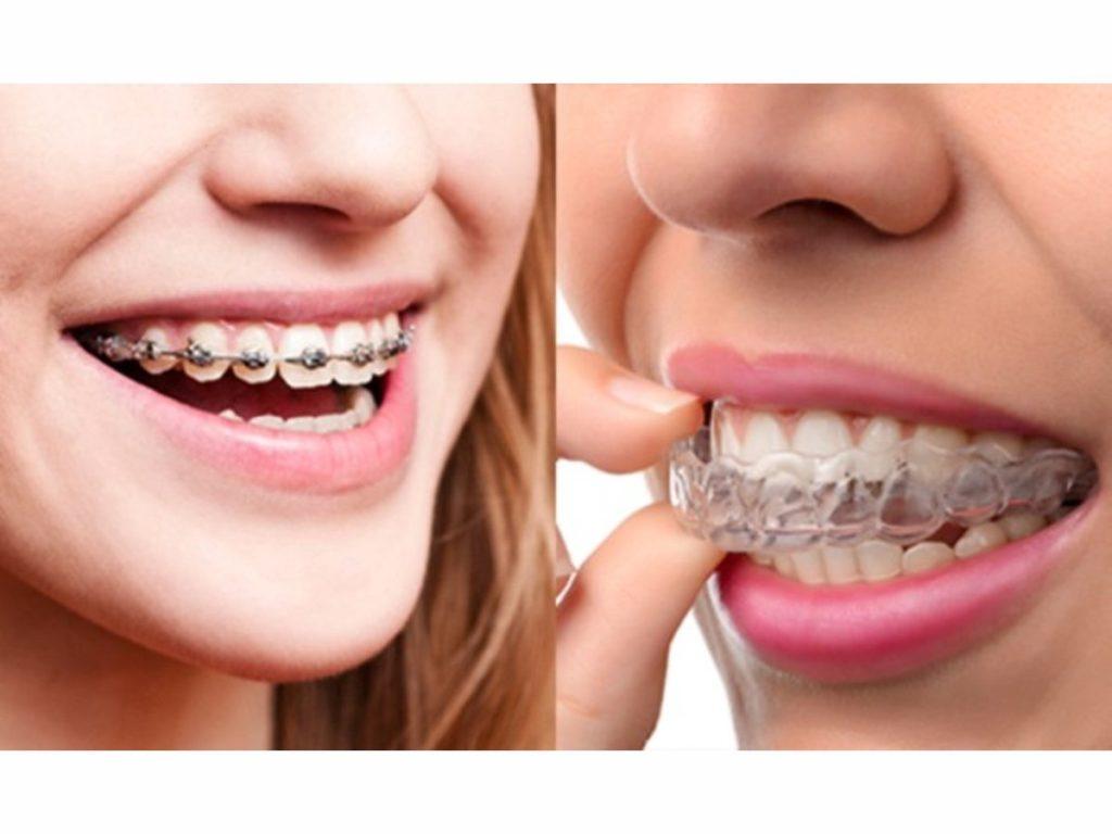 clear braces queens